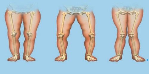 درمان نرمی استخوان یا راشیتیسم به کمک طب سنتی