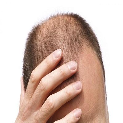 بهترین مواد غذایی برای رشد و تقویت مو
