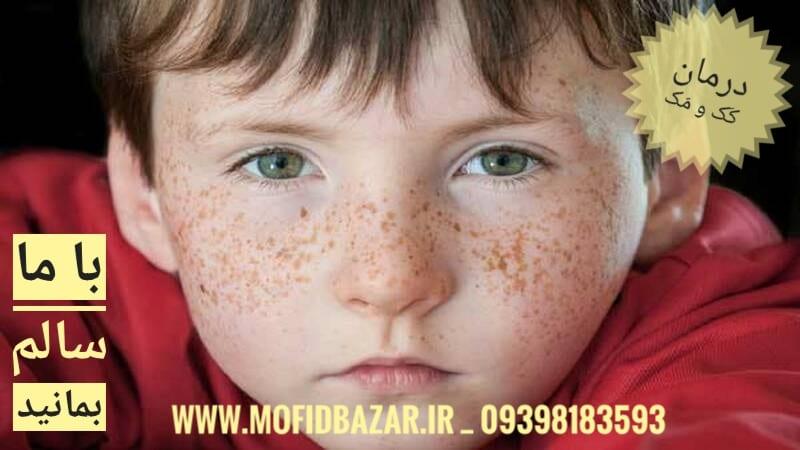 درمان کَک و مک پوست
